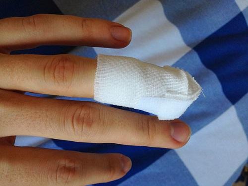 Уколоть палец— что говорят народные приметы